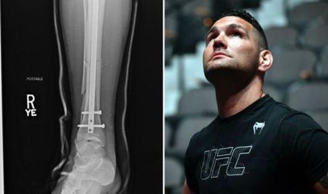 Chris Weidman injury: Former UFC champion shares X-rays of broken leg sustained at UFC 261