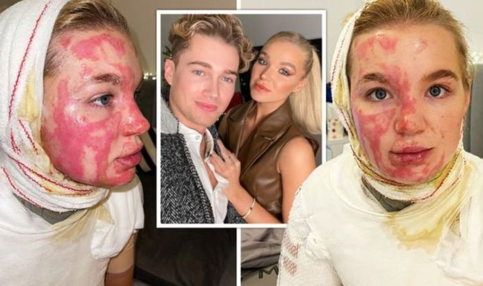 AJ Pritchard's girlfriend Abbie shares photos of her burns from horrific fireball accident