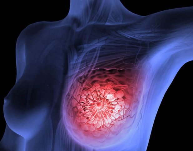 Image result for breast cancer symptoms and treatment