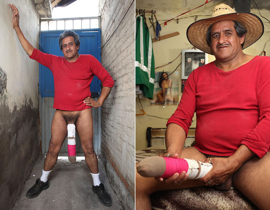 Meet The Man With The Worlds Largest Penis