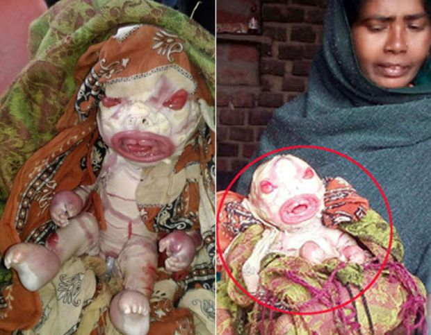 The baby girl born in India due to the rare condition Harlequin Ichthyosis