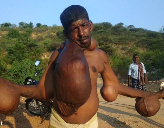 K Palanisami, 42 from the village of Podarankadu, Tamil Nadu, India who has huge tumours all over him