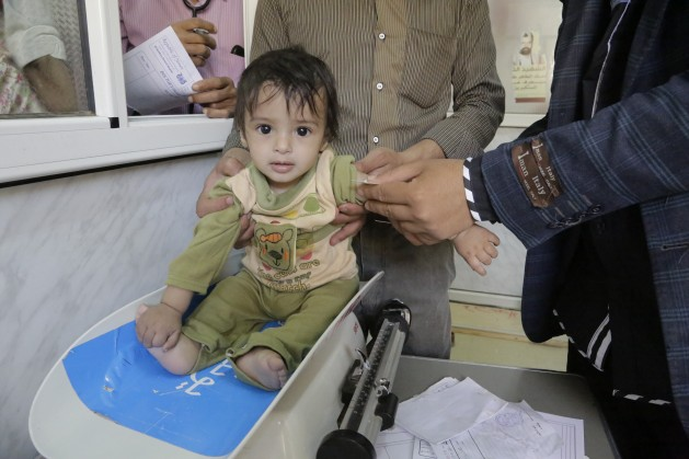 On 6 May 2016 in Yemen, a baby is screened for malnutrition at the UNICEF- supported Al-Jomhouri Hospital in Sa'ada. Credit: UNICEF/UN026928/Al-Zekri