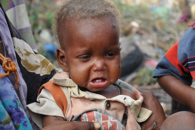 A child from drought-stricken southern Somalia who survived the long journey to an aid camp in the Somali capital Mogadishu. Credit: Abdurrahman Warsameh/IPS
