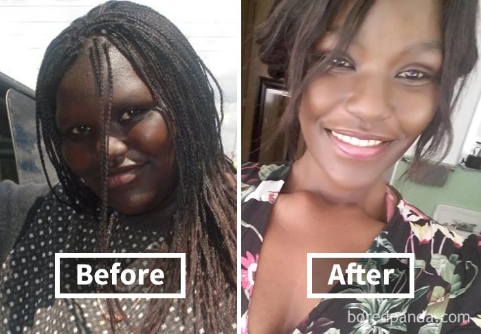 before-after-weight-loss-face-transformation-202-5a2e7858092f7__700