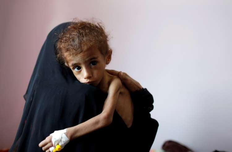 Po svetu je podhranjenih skoraj 690 milijonov ljudi