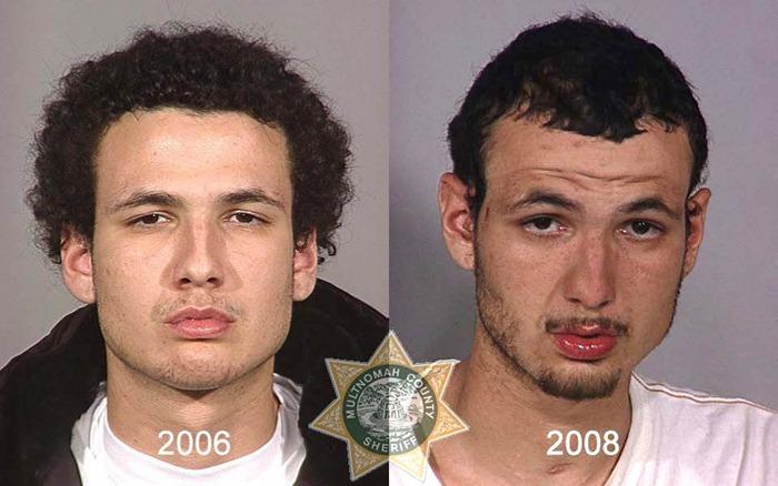 antes y después drogras20