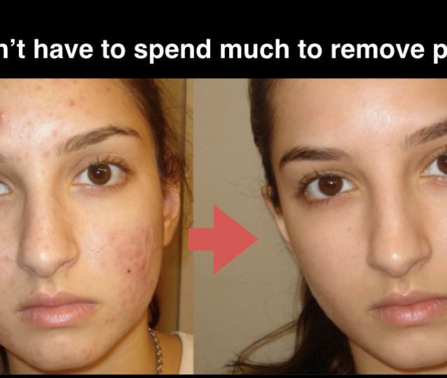 Natural Home Remedies To Get Rid Of Acne Fast No More Acne Scars