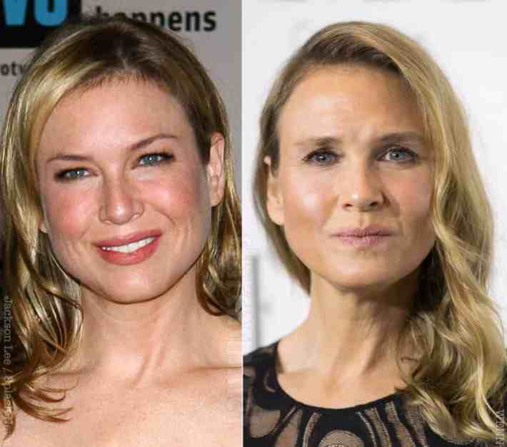 20 worst cases of celebrity plastic surgery gone wrong