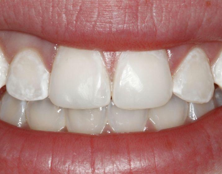La fluorosis también ayuda a la pérdida del color blanco en los dientes. Foto de Reneemd.