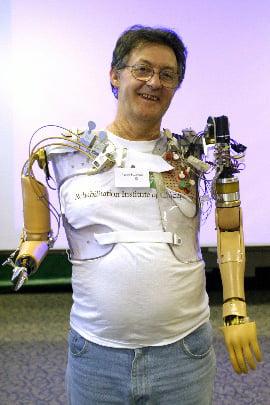 Jesse Demonstrating Bionic Arms 1