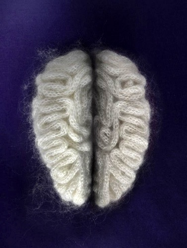 brain_coil.jpg