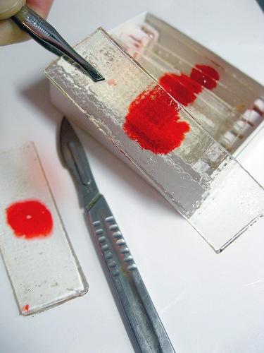 bloodcandy11.jpg