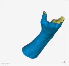 Cleaned-up wrist surface model.