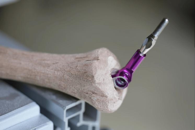 Erkrankung der gelenke der finger anatomie bauch