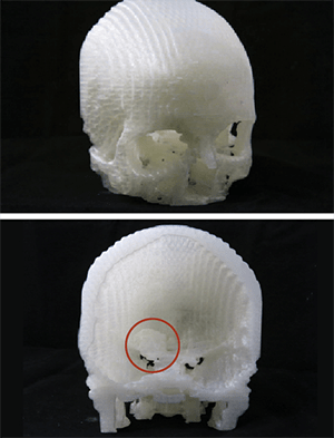 This 3D print helped doctors plan a new, minimally-invasive surgery to remove Scott's meningioma.