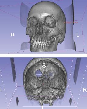Lodged just behind Scott's left eye was a three-centimeter tumor