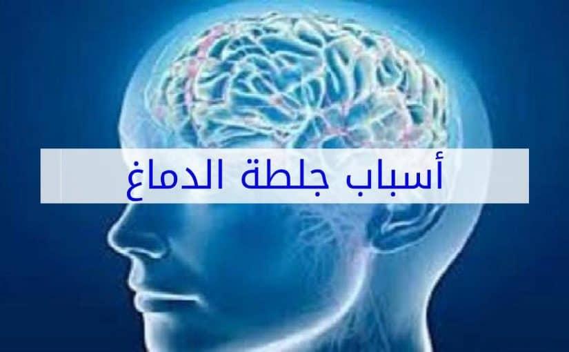 جلطة الدماغ والغيبوبه موسوعة