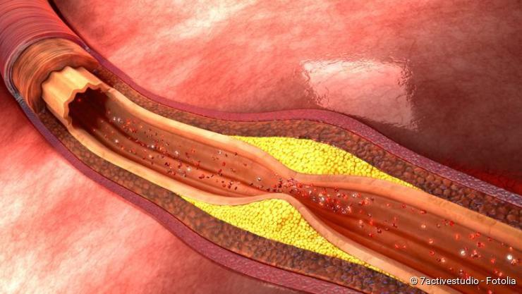 thrombose symptome behandlung