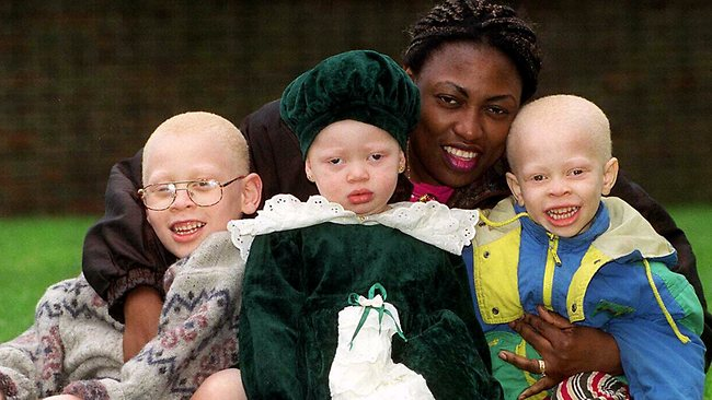 Harassed Albinos Call For Help