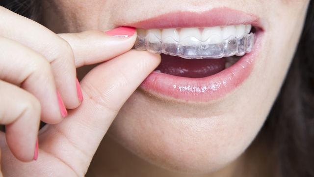 foto bij artikel Hoe houd je tanden na een orthodontische correctie het best in positie?