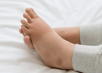 How to deal with swollen ankles during pregnancy