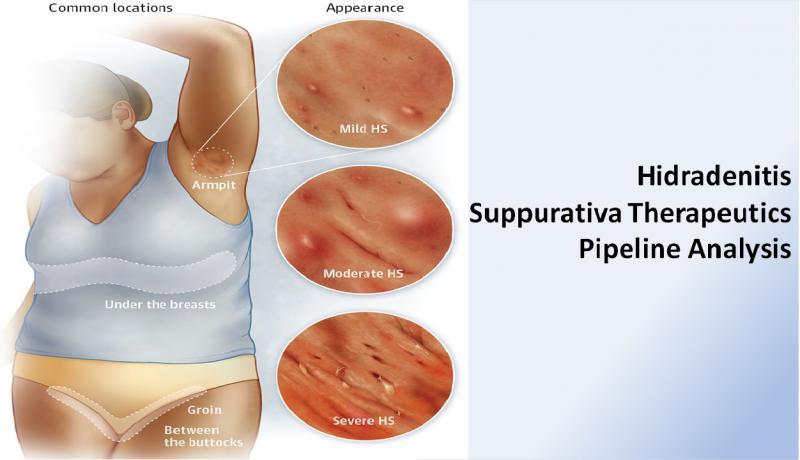 Hidradenitis Suppurativa Therapeutics- Pipeline Analysis