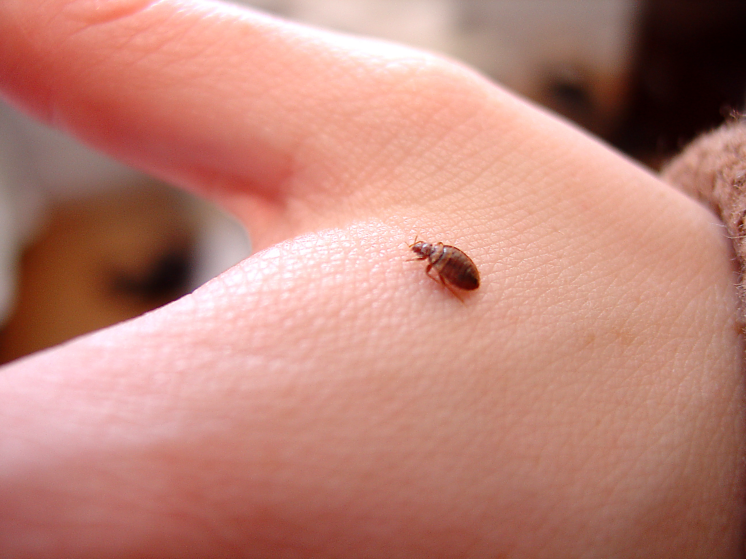 signs of bed bug bites #10