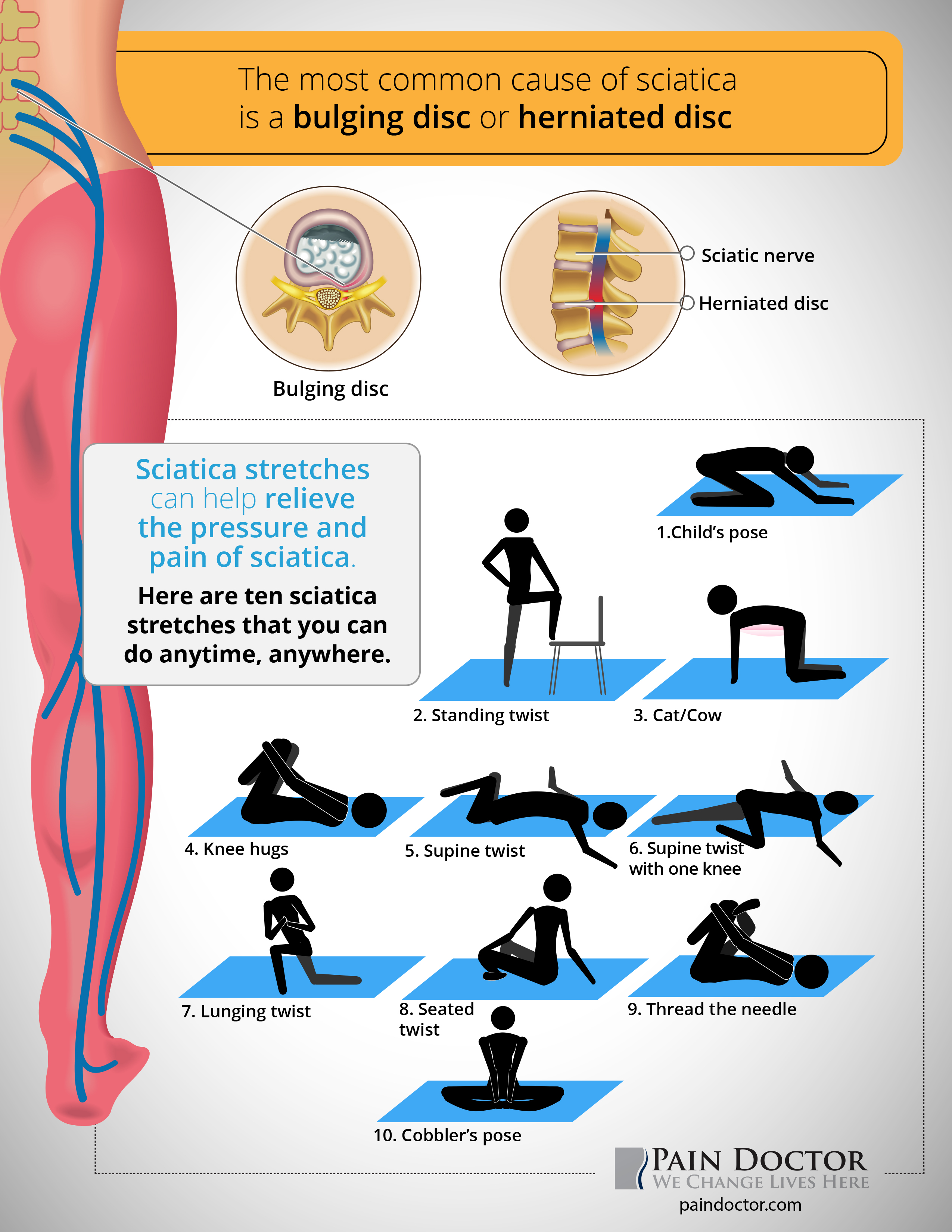 10 Sciatica Stretches You Can Do Anytime Anywhere