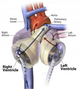 Arizona man is first to go home with a total artificial heart