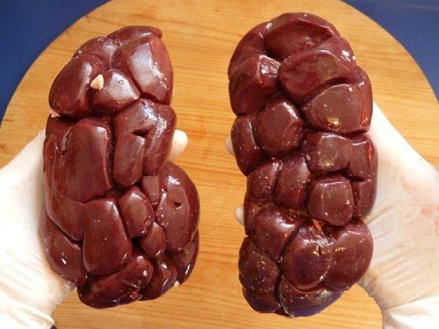 Best Way To  Avoid Kidney Failure