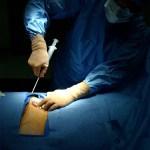 Linfoma a grandi cellule B primitivo del mediastino