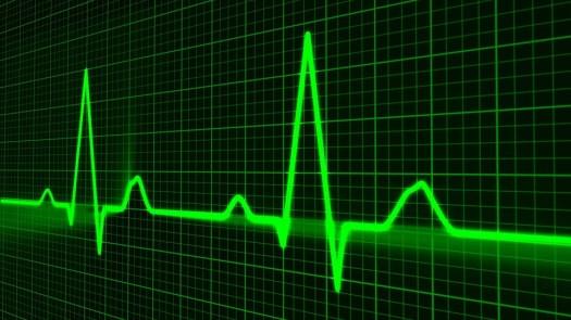 Traccia Di Impulso, Medicina Sanità, Battito Cardiaco