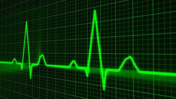 パルス波形, 医療, ハートビート, ハート, 医療機器, 機器, シンボル