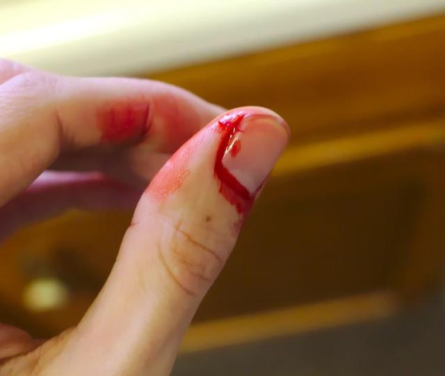 Kecelakaan Berdarah Pendarahan Jari Berdarah Darah