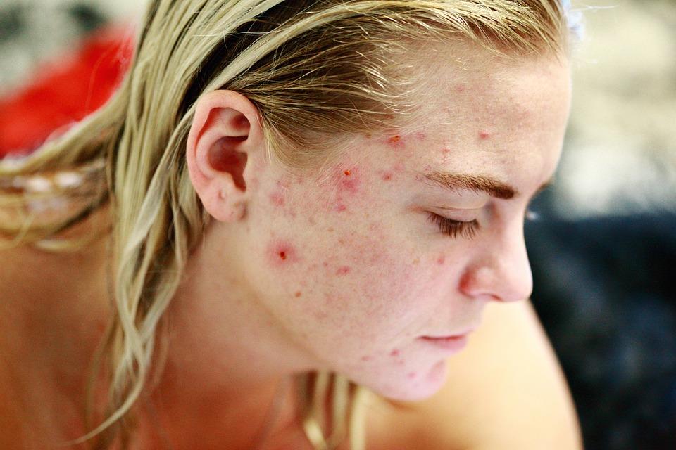 Strijd, Acne, Eigenliefde, Huid, Gezicht, Portret. Heeft voeding effect op acne?