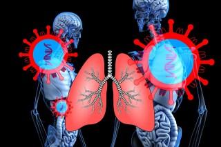 Coronavirus, Sars-Cov-2, Lung, Lung Disease, Corona