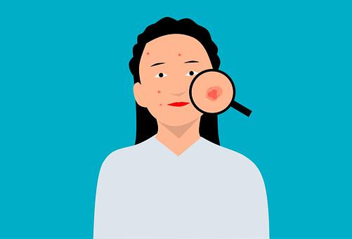 acne-6107540__340 Espinhas no rosto : Acabe de forma rápida e simples