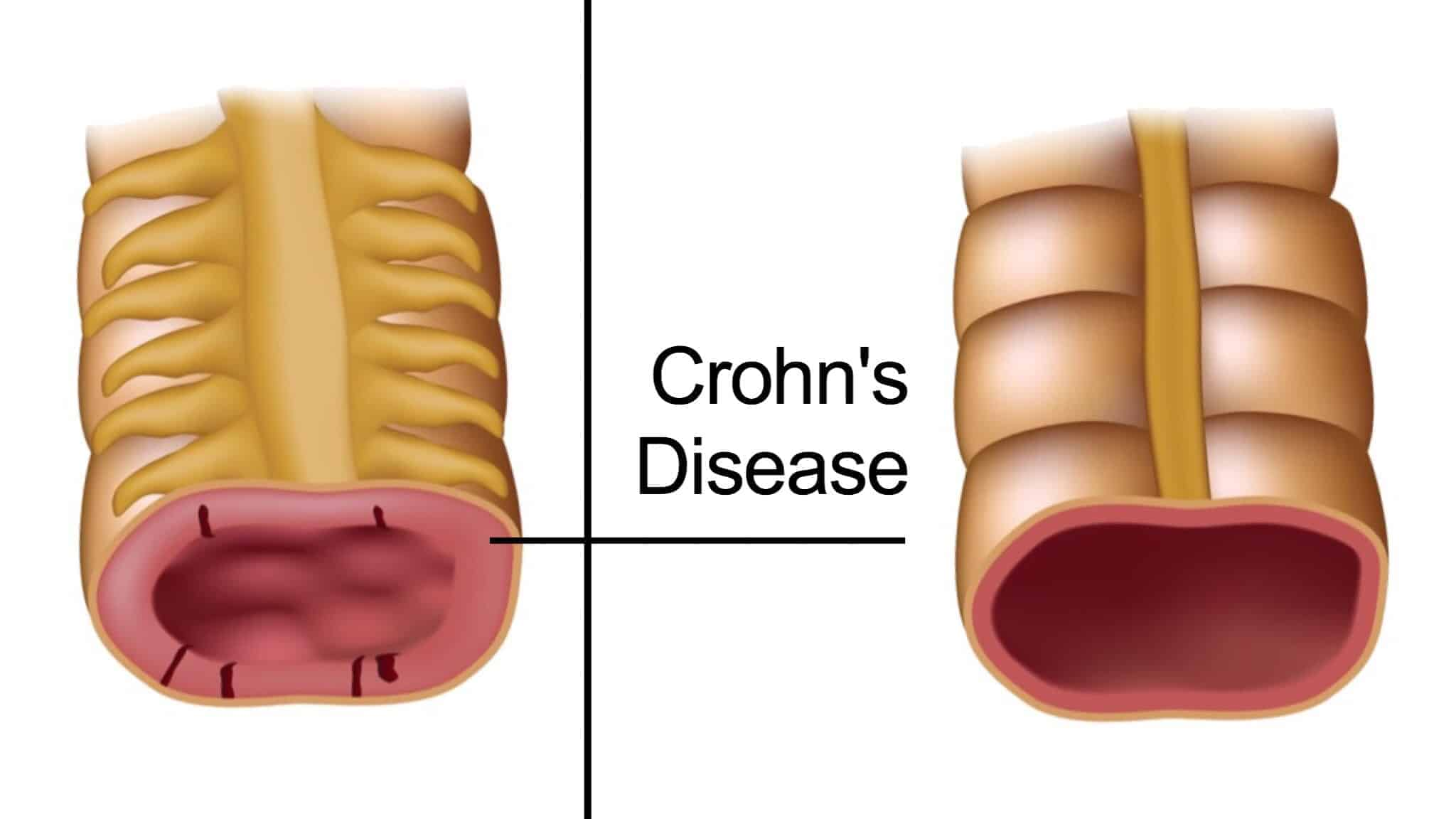 5 Early Warning Signs Of Crohn S Disease