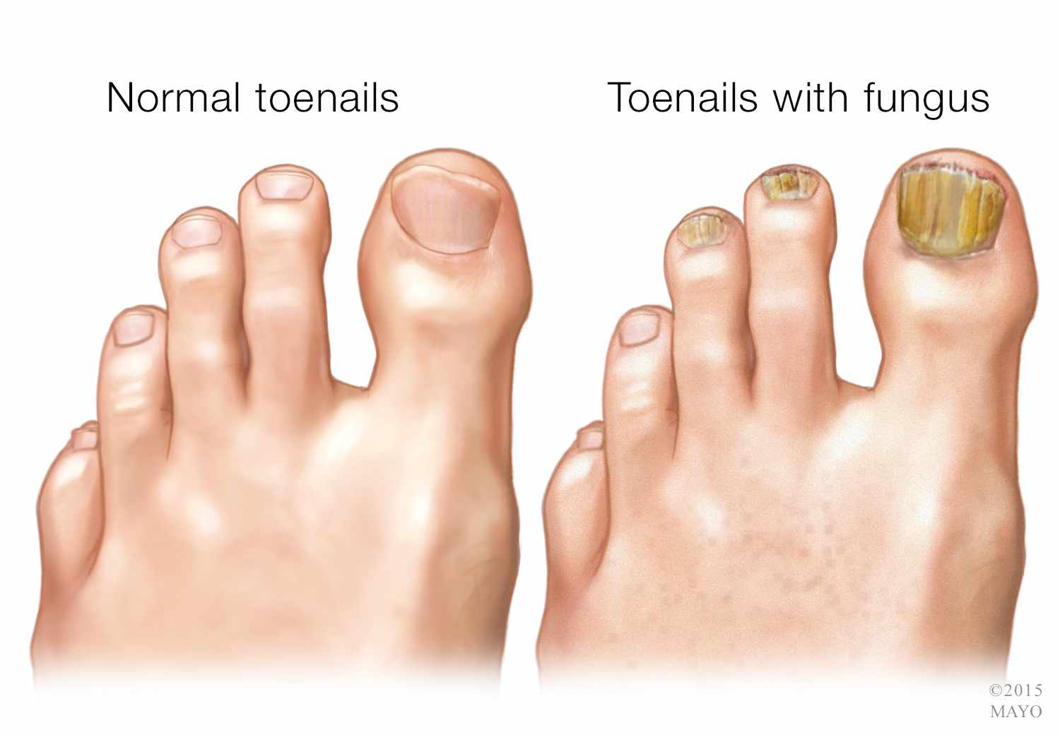 How to treat and remove toe nail fungus