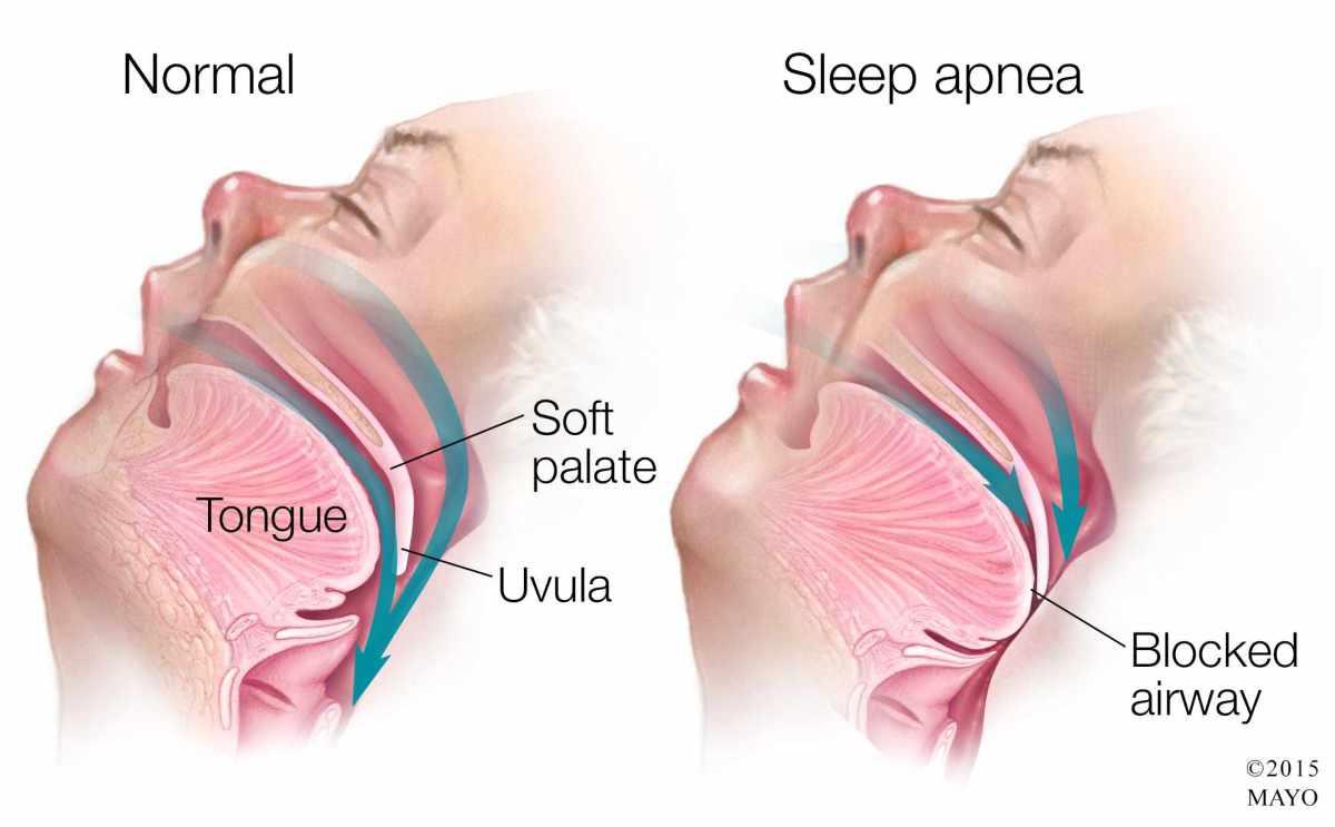 Medical illustration of sleep apnea - SLEEP APNEA: Introspect, Side Effect, and Solution