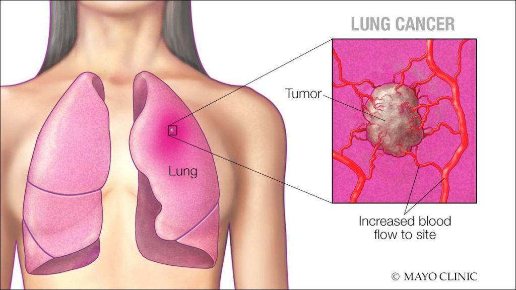 Image result for lung cancer symptoms