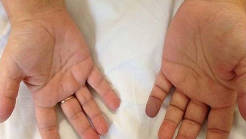 ratselhafter patient blauer finger und gelenkschmerzen der spiegel