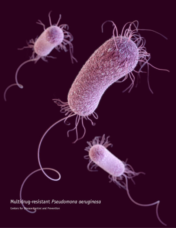 This illustration depicts a 3D computer-generated image of three multidrug-resistant Pseudomonas aeruginosa bacteria. Image credit: James Archer / CDC.