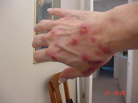 Morgellons Case Definition by the MRF to the CDC