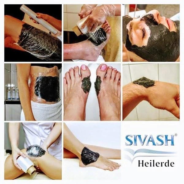 Anwendungsbeispiele der Sivash Heilerde