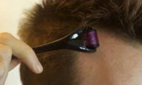 Black dermaroller being rolled on scalp