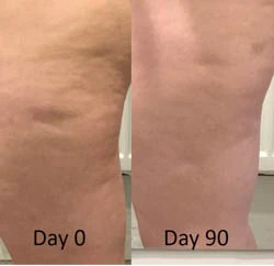 Legs before and after drinking targeted solution