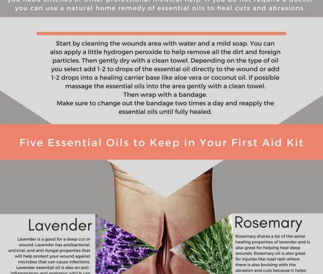 How To Topically Apply Essential Oils To Wounds