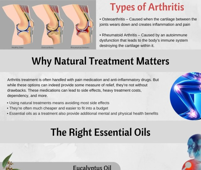 Essential Oils To Relieve Arthritis Info Graphic